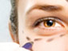 Blepharoplasty Informational Video