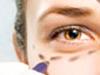 Blepharoplasty Informational Video